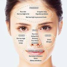 Acne Face Chart Pin By Nealie Williams On Beauty In 2019 Acne Skin Face