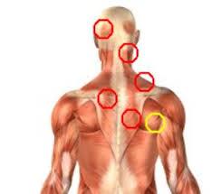 Pijnlijke nek en schouderspieren