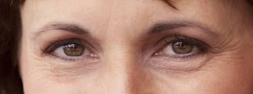 regular eye cream use