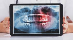 While impacted wisdom teeth cost upwards of $600. Wisdom Teeth Pictures Symptoms Surgery Pain Relief Ask The Dentist