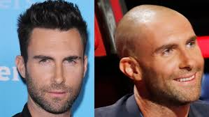 top 10 celebrity hair transplants