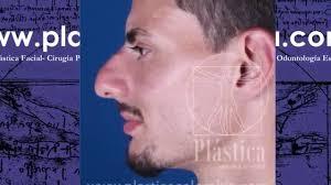 Casos Pacientes Rinoplastia Masculina Cirugía Tabique Desviado