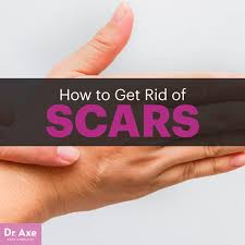 how to get rid of scars dr axe