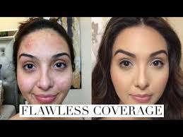 how to cover acne breakouts dark spots with makeup you