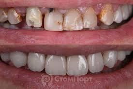 Рефераты лекции доклады по стоматологии  Прямая композитная реставрация семи передних верхних зубов