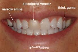 a close up photo showing a bad discolored veneer a narrow smaile and gum