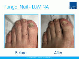 Laser Treatment Machines for Nail Fungus or Fungal Nail • Lynton Lasers
