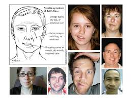 Bell's Palsy facial, nerve problems