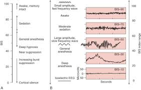 Anesthesia Monitoring Chart Bispectral Index An Overview Sciencedirect Topics