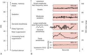 Bispectral Index An Overview Sciencedirect Topics