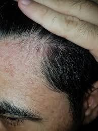 receding hairline and beard photos