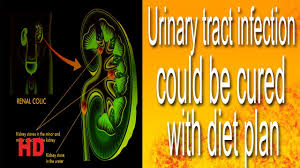 Urine Infection Diet Chart Urinary Tract Infection Could Be Cured With Diet Plan