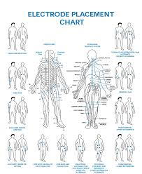 Tens Electrode Placement Chart For Hip Pain