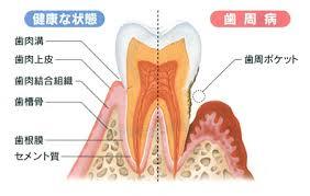 「歯周病」の画像検索結果