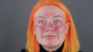 this your tried to give herself henna freckles and needless to say it did not go well