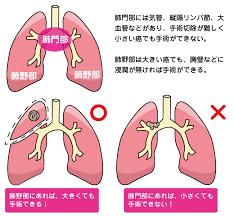 肺がん ステージ 4