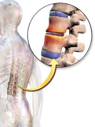 back pain ile ilgili görsel sonucu