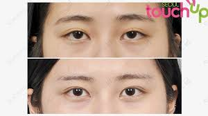 how double eyelid surgery has bee a rite of page for many south korean youths