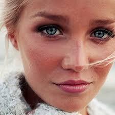 Citroen tegen acne