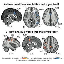 Treating Breathlessness Via The Brain Respiratory Futures