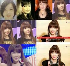 a talented singer park bom of korean famous group 2ne1 made her fan panic with the swelling and deformity face