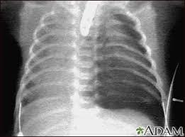 Pneumothorax Chest X Ray Medlineplus Medical Encyclopedia