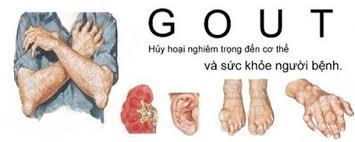 Kết quả hình ảnh cho bệnh gut