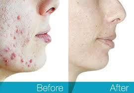 best solution for pimples
