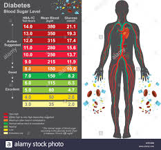 Diabetes Chart Symptoms Of High Blood Sugar Include