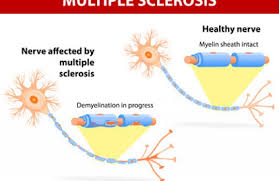 multiple sklerose verstopfung