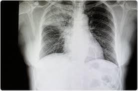 pneumonia epidemiology