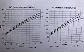 Twin Pregnancy Growth Chart You Will Love Twin Fetal Growth Chart Pregnancy Weight Chart