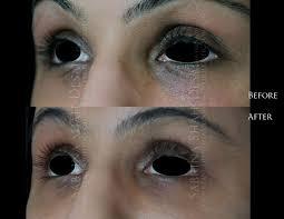 case 5 eye boost tear trough rejuvenation