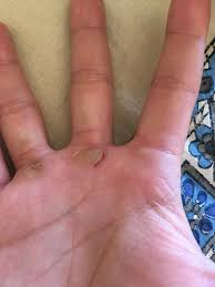 hey guys i had a callus tear on me for the first time looking for some recommendations from you veterans out there so i can still workout today and allow