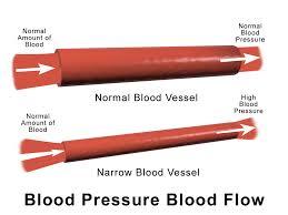 Blood Pressure Diagram High Blood Pressure Quick Fitness Hub