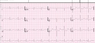 In An Ecg Pattern The T Wave Is Caused By