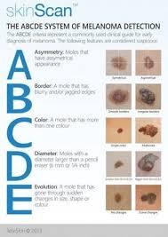 Mole Chart For Skin Cancer Skin Cancer Melanoma Nurses Nurses Nurses Nursing