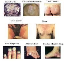 Oem Liquid Solution For Skin Itching,Hand Cuffs,Seborrheic ...