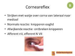 corneareflex