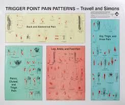 Travell Simons Trigger Point Charts Lifehacked1st Com