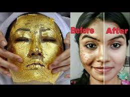how to get rid of deep acne scars fast at home naturally 100 guaranteed results in 7 days
