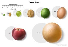 Liver Tumor Size Chart Childhood Extracranial Germ Cell Tumors Treatment Pdq
