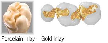 Dental Inlay Riverbank Dental Inlays And Onlays