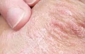 Plekjes op de huid, ruw en lichtbruin