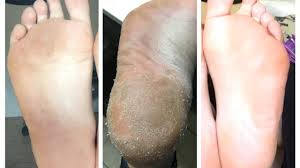 Image result for foot peel
