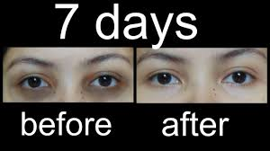 क ल घ र स क स छ टक र प ए magical home remes to remove under eye dark circles hindi you