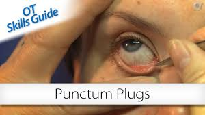 ot skills guide punctum plugs