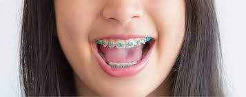 is home teeth straightening safe