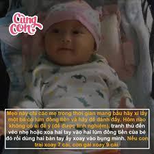 BABY TATTOO Vietnam - TẠO LÚM ĐỒNG TIỀN CHO CON - ĐỂ LÀM GÌ?