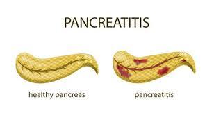 Acute pancreatitis - med-Info